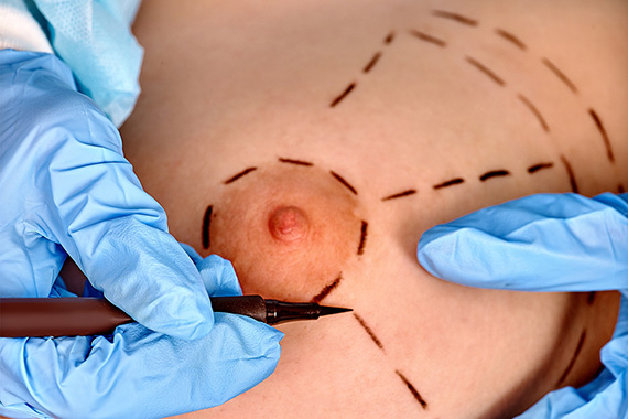 Chirurgie de la plaque areolo-mamelonaire