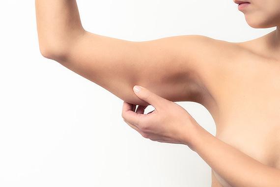 Chirurgie Esthetique - un lifting des bras