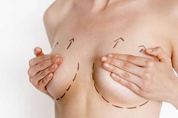 Implants mammaires et maladie du tissu conjonctif