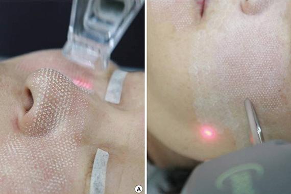 Chirurgie Esthetique Laser Pearl Fractional